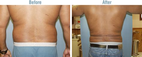 lipo section before and afters plastic surgery cosmetic surgery