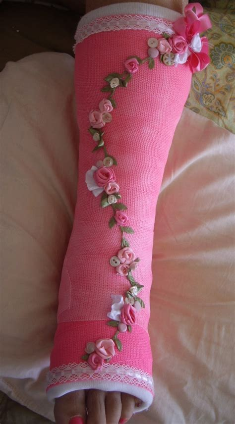 Cool Cast Decorating Ideas sweeet designs by cheryl my decorated cast