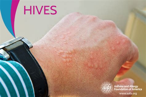 what to do for allergies hives urticaria aafa org