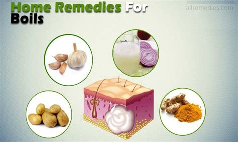 20 home remedies for pinworms in adults and in children