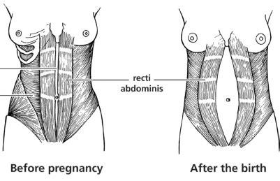 steps   flatter stomach  pregnancy