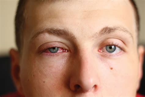 Sprei Eye Pink different types of pink eye require different treatments