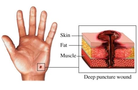 puncture wound puncture wound causes symptoms treatment puncture wound