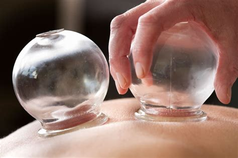 Cupping Detox Therapy by Cupping And Moxibustion In Traditional Medicine