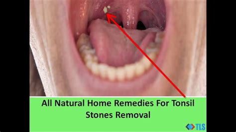all home remedies for tonsil stones removal