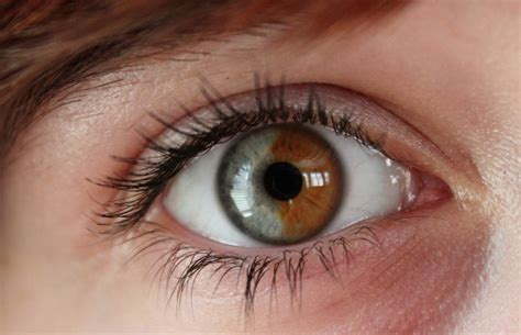 Laser Treatment To Turn Brown Blue Yes Or No by Sectorial Heterochromia By Instantalex On Deviantart
