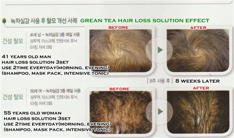 Kaminomoto Hair Growth Accelerator Malaysia anti hair loss shoo 500ml professional green tea hair