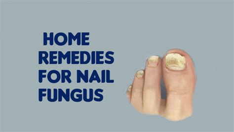 top 6 effective home remedies for nail fungus