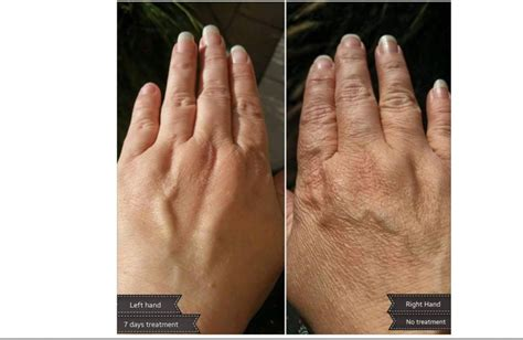 Serum Luminesce visible results from using luminesce products