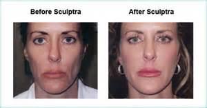 Blu Light Treatment Sculptra Cosmetic Filler Volumize Your Face Austin Tx