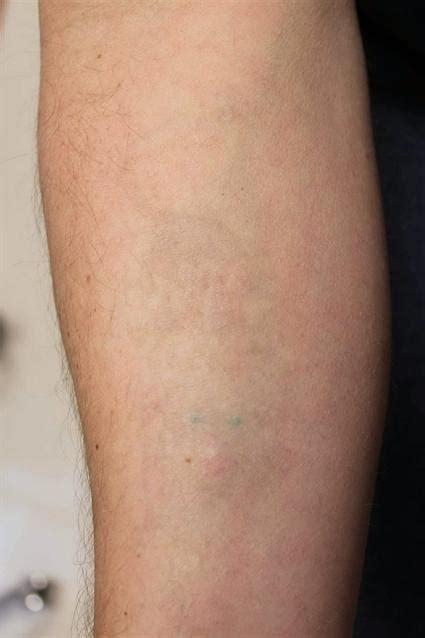 tattoo removal arkansas laser removal 213 fox valley plastic surgery