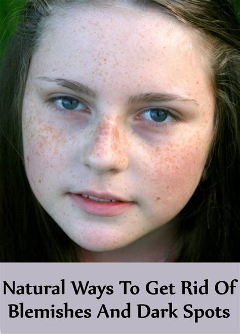 7 Ways To Get Rid Of Hair by 7 Ways To Get Rid Of Blemishes And Spots