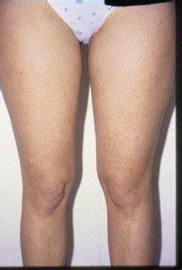 eliminare cellulite interno coscia eliminare la cellulite liposuzione liposcultura e