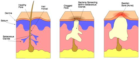 diagram of a pimple rosacnil gel for acne and skin blemishes