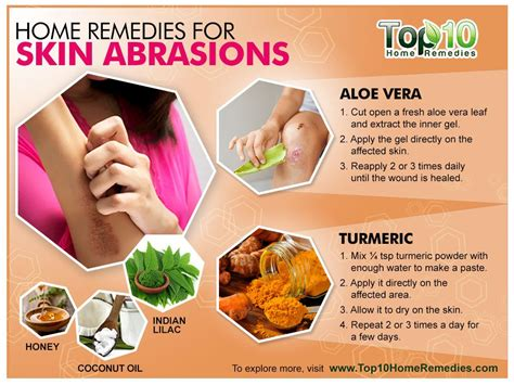 Home Skin Remedies by Home Remedies For Skin Abrasions Top 10 Home Remedies