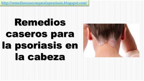 remedios para dermatitis seborreica la ropa para la dermatitis seborreica tratamiento dermatitis seborreica