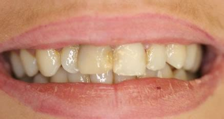 porcelain veneers   chipped  stained teeth