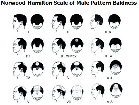 pattern and its types genetic hair loss male pattern baldness toppikmalaysia