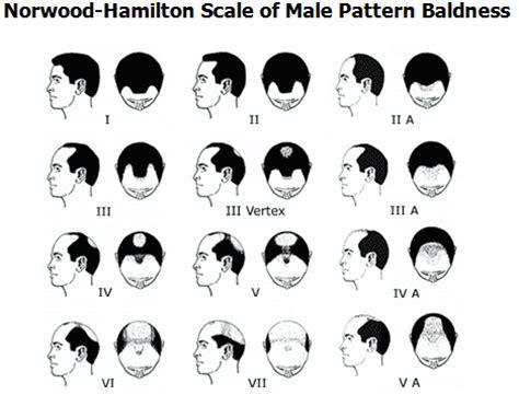 Genetic Hair loss Male pattern Baldness ToppikMalaysia