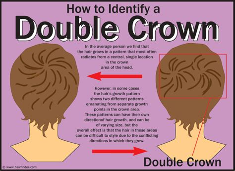 hair styles for foward hair growth pattern crown hair growth patterns usually are seen at the back of the head and involve areas where the