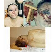 Col James Sabow Original And Doctored Photos Of Injury To Back Head