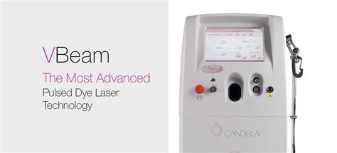 candela laser pulsed dye laser technology syneron candela