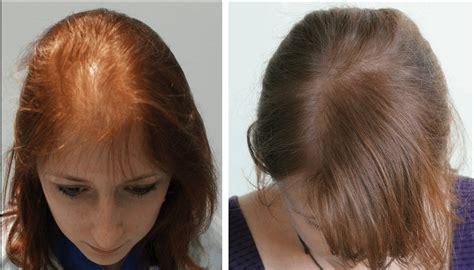 hair transplant for women women s hair transplants uk hair transplant clinic