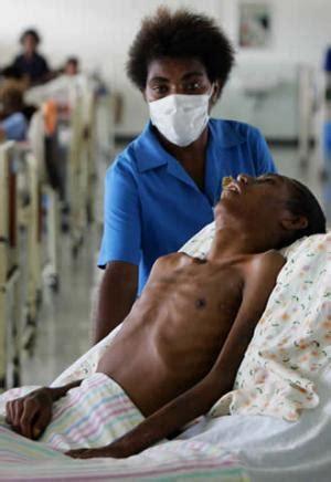 imagenes impactantes del vih sida sida imagenes del vih quot sida quot