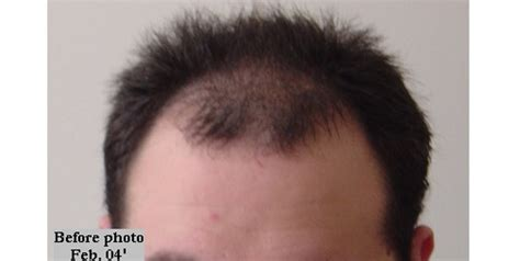 prescreened hair transplant physicians hair transplant result timeline photos