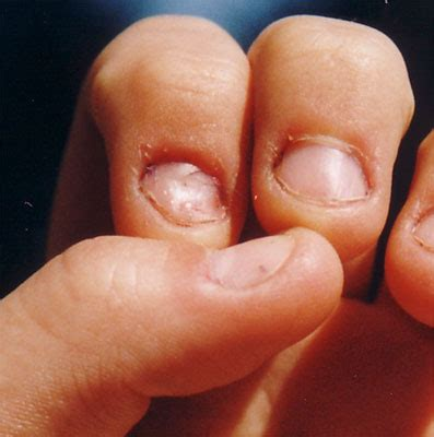 small nail beds image gallery small fingernails