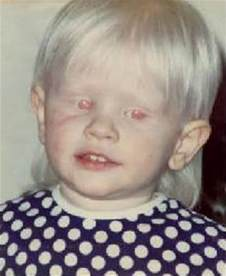 what color are albinos rarest eye colors in humans not green stormfront