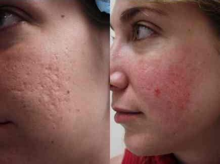 free for health acne scar treatment with laser
