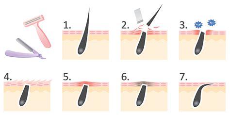 tweezing vs shaving pubic area for women intimrasur ohne pickel wie man die l 228 stigen pickel vermeidet