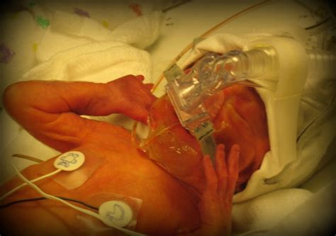 c section gas pain aimee s birth story preemie babies 101