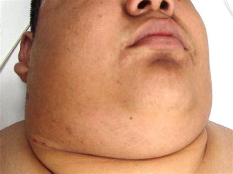 swollen neck image gallery lymphoma neck