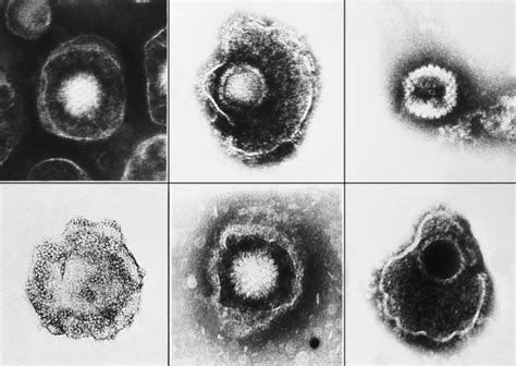 herpes herpes simplex virus 2 giant microbes electron micrographs of herpes viruses biology of human