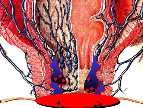 alimentazione per emorroidi infiammate emorroidi dieta e alimentazione
