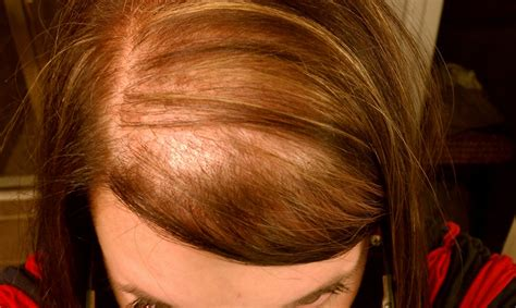 woman with extremely thinning hair hair loss in women newhairstylesformen2014 com