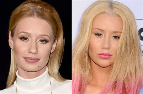 did amy carlson get plastic surgery did iggy azalea get plastic surgery on her face page six