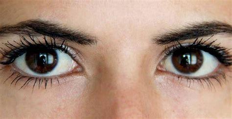 imagenes reales de ojos los ojos indican qu 233 enfermedad pod 233 s tener