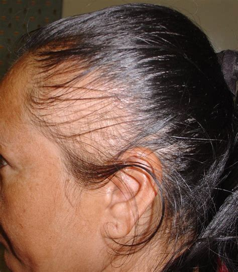 Alopecia Updos | hair loss causes advanced hair restoration