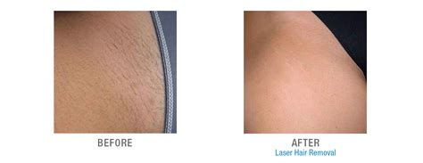 does laser hair removal hurt more than a tattoo laser hair removal lakernick health and wellness