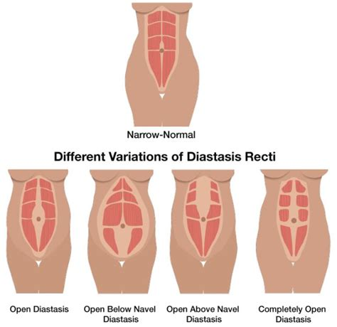 diastasis recti illustration3 living see best ideas about diastasis