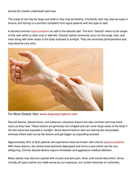 Rashes Lupus Symptoms In Women | the lupus rash lupus symptoms in women