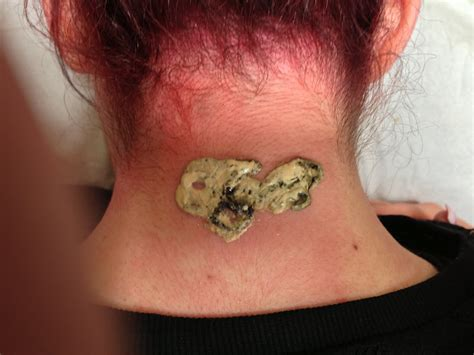 most effective tattoo removal method which is the best removal method claritas laser