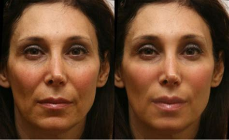juvederm smith laser reduce wrinkles beauty lift