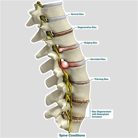 lumbar spine diagram labeled spine conditions labeled bodypartchart official site