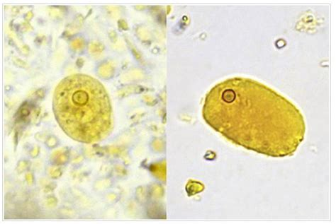 Wbc In Stool Causes by Artifacts In Stool Laboratories