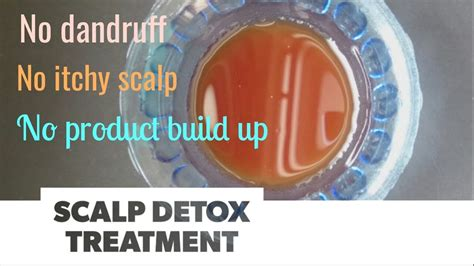 Detox Itching by Scalp Detox Treatment Best Way To Get Rid Of Dandruff