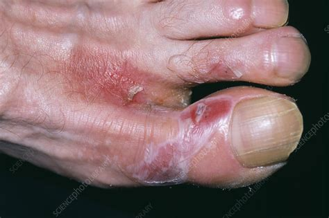 photos of hot water burns hot water burn on foot stock image m335 0174 science